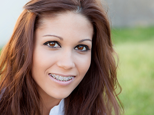 clear-aligners-arent-the-answer_52876510.jpg
