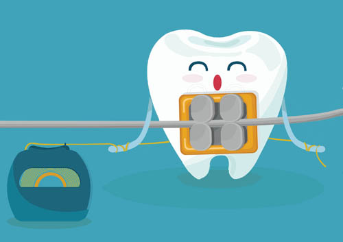 floss-with-braces_38334506.jpg